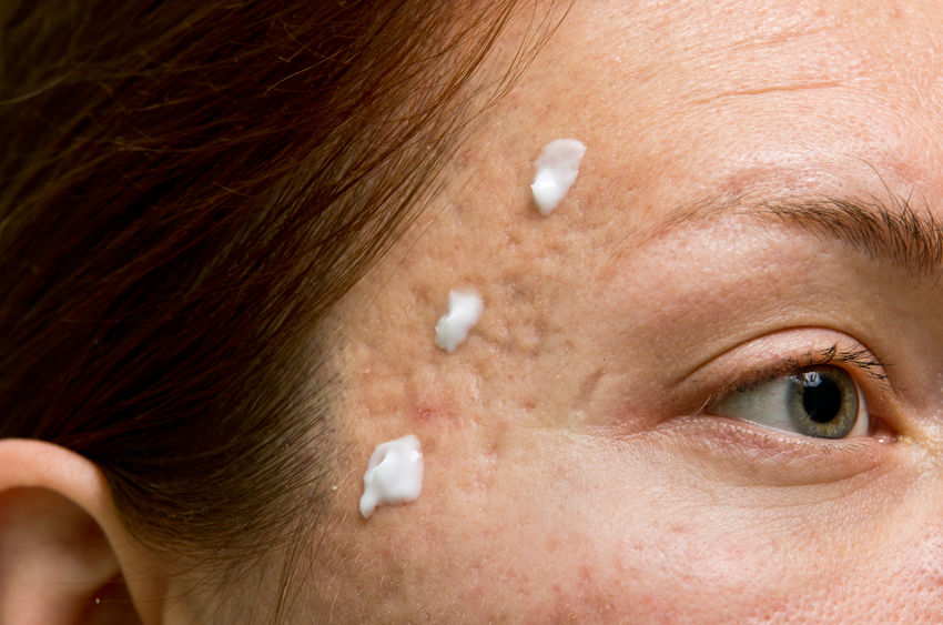 woman using cream to improve acne scars